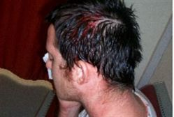 Beaten by haredim in Beit Shemesh 1