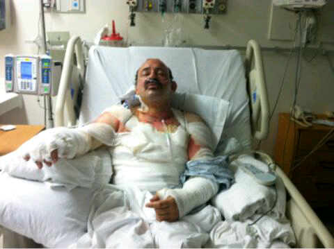 Chaim Aron Rottenberg after cleanup and bandaging 5-22-11