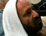 Chaim Aron Rottenberg closeup