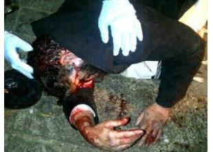 Avraham Hirshman bloody in street 10-25-11
