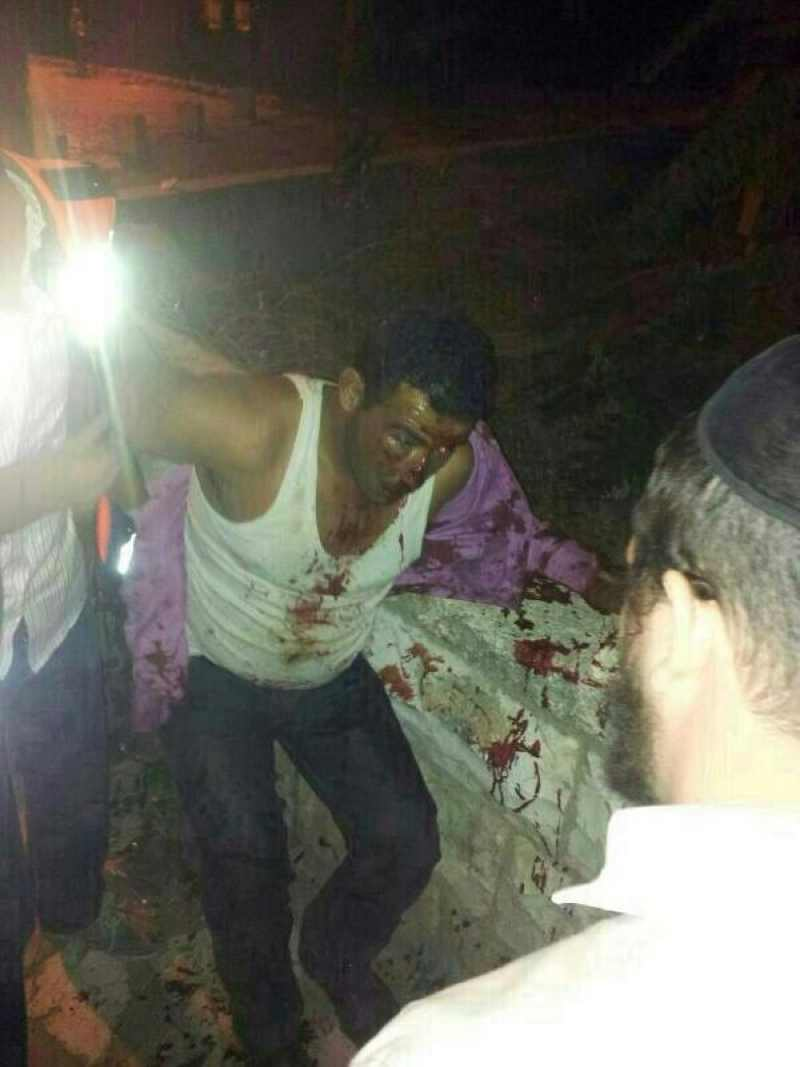 Arab beaten and stabbed by haredi yeshiva students 10-29-2013