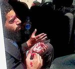 Haredi man injured in Beit Shemesh riot 8-14-2013