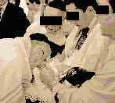 Bris circumcision metzitzah b'peh mbp