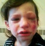 Child with St. Moritz chemical spray burns