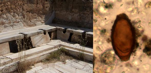 Left- Roman latrines from Lepcis Magna in Libya. Right- Roman whipworm egg from Turkey  Credit- Left- Craig Taylor. Right- Piers Mitchell